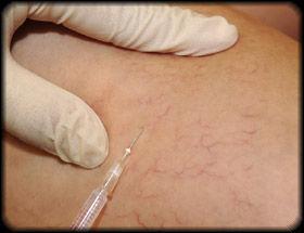 Microscleroterapia