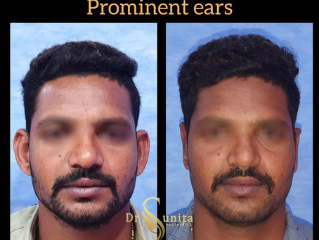 OTOPLASTY  Protruding ears