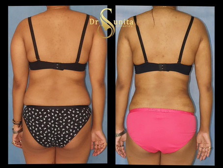 360 ° Liposuction of trunk and arms.
