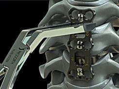 Cervical Plate ST (5).JPG