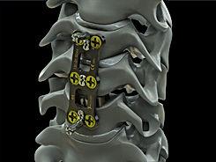 Cervical Plate ST (9).JPG