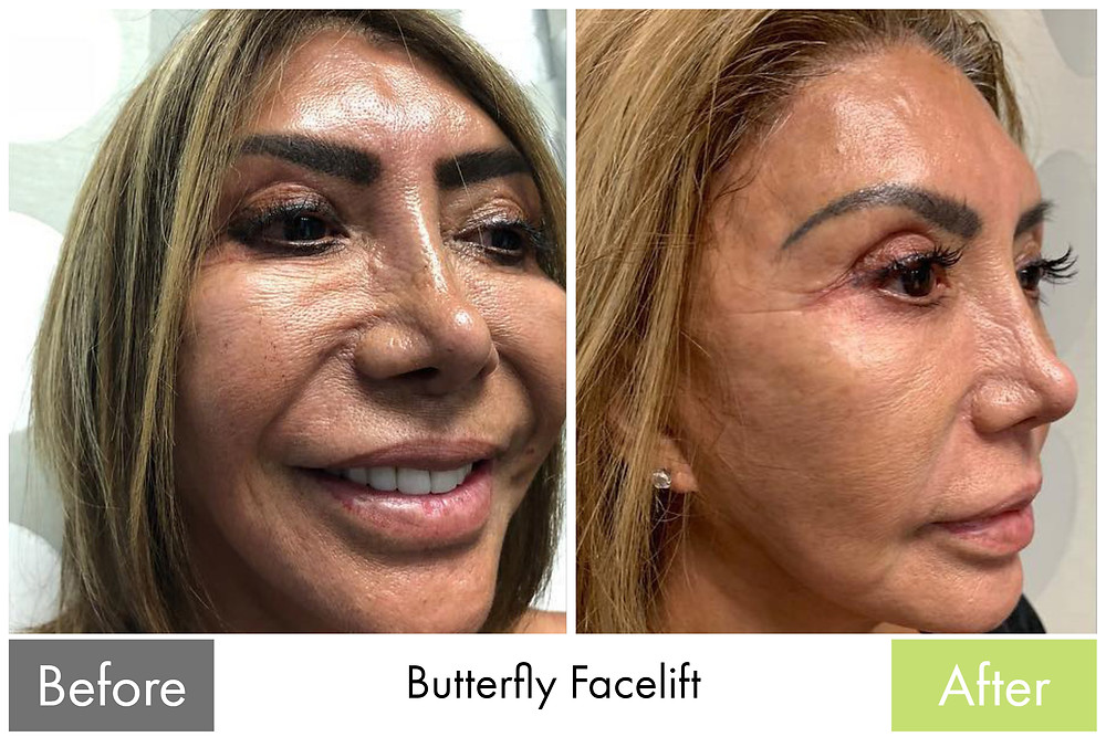 Butterfly Facelift Filler Removal