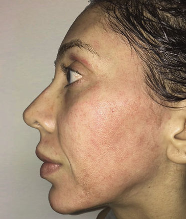 PRP Facelift, PRP Hair restoratioon, Vampire Facelift, Bosley Hair Restoration, Butterfly Facelift Before, Nonsurgical Facelift, Skin Tightening, PRP Facelift, Acne Removal, Scar Removal, UL Therapy, Newport Beach
