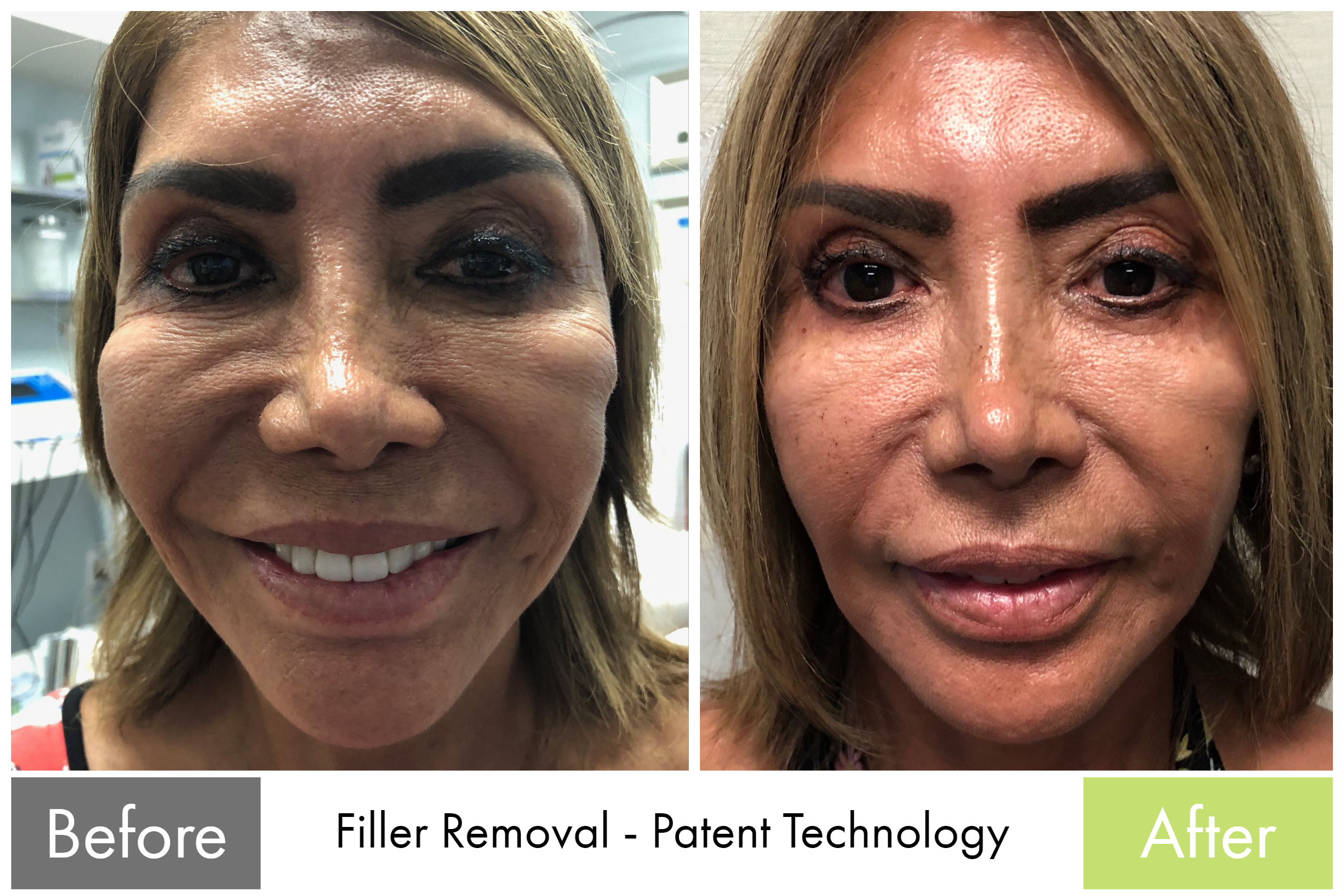 Filler Removal - 1st Treatment