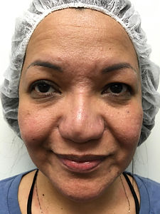 A woman in Newport Beach, CA, before our non-surgical face lift