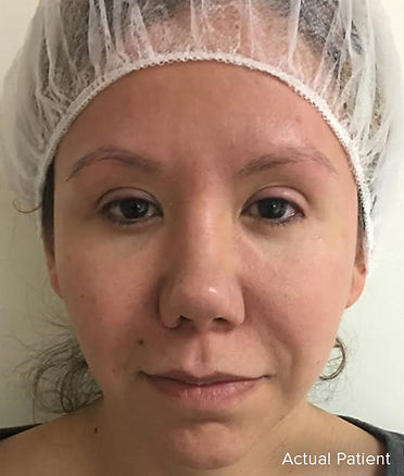 PRP Facelift, PRP Hair restoratioon, Vampire Facelift, Bosley Hair Restoration,Butterfly Facelift Before, Nonsurgical Facelift, Skin Tightening, PRP Facelift, Acne Removal, Scar Removal, UL Therapy, Newport Beach