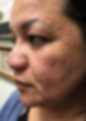 Butterfly Facelift Before, Butterfly Facelift Before, Nonsurgical Facelift, Skin Tightening, PRP Facelift, Acne Removal, Scar Removal, UL Therapy, Newport Beach