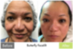 Scar & Acne Removal with Butterfly Facelift
