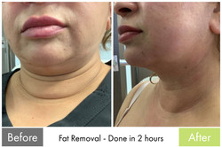 Fat Removal Treatment 1 - Facelift