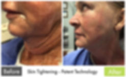 Skin Tightening - Butterfly Facelift with Tripollar RF