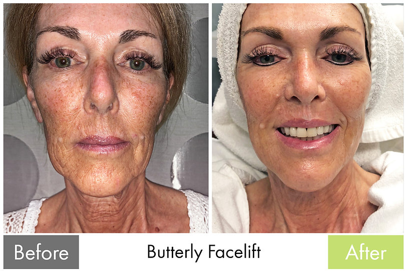 Skin Tightening - Butterfly Facelift with Ultherapy