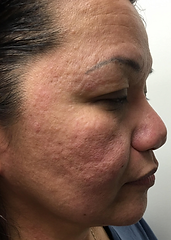 Butterfly Facelift Day 1, Butterfly Facelift Before, Nonsurgical Facelift, Skin Tightening, PRP Facelift, Acne Removal, Scar Removal, UL Therapy, Newport Beach