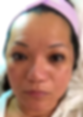 Butterfly Facelift Day 45, Butterfly Facelift Before, Nonsurgical Facelift, Skin Tightening, PRP Facelift, Acne Removal, Scar Removal, UL Therapy, Newport Beach