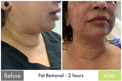 Fat Removal Treatment 2 - Facelift