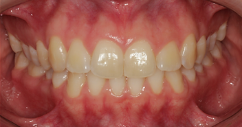 Dr. Vitor Guarçoni de Paula - Clareamento Dental