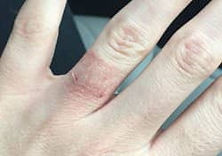 Prevent Skil Allergies from Jewelry