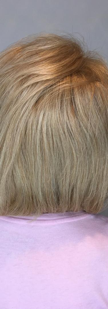 Sylvia_hair restoration_integration_afte