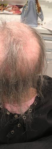 Sylvia_hair restoration_integration_befo