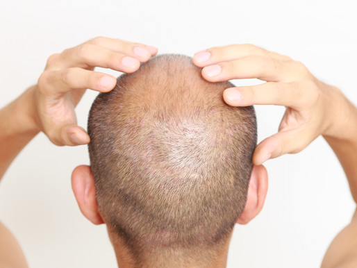 10 Things Hair Restoration Surgeons Won't Tell You