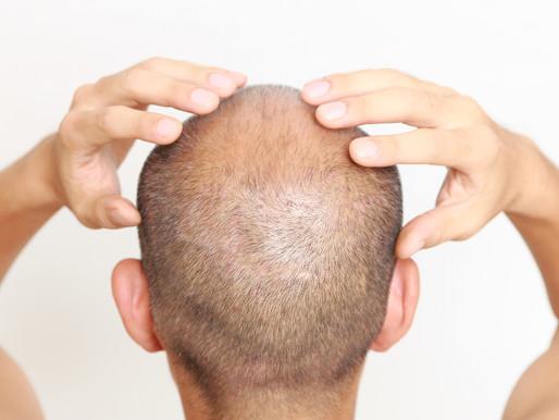 10 Things Hair Restoration Surgeons Won't Tell You