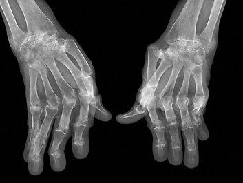 rheumatoid hands image.jpg