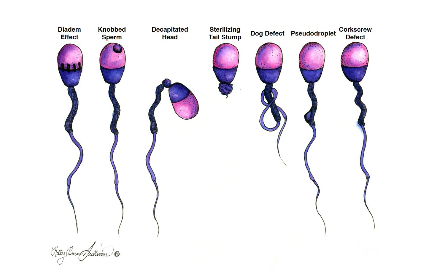 Sperm Defects