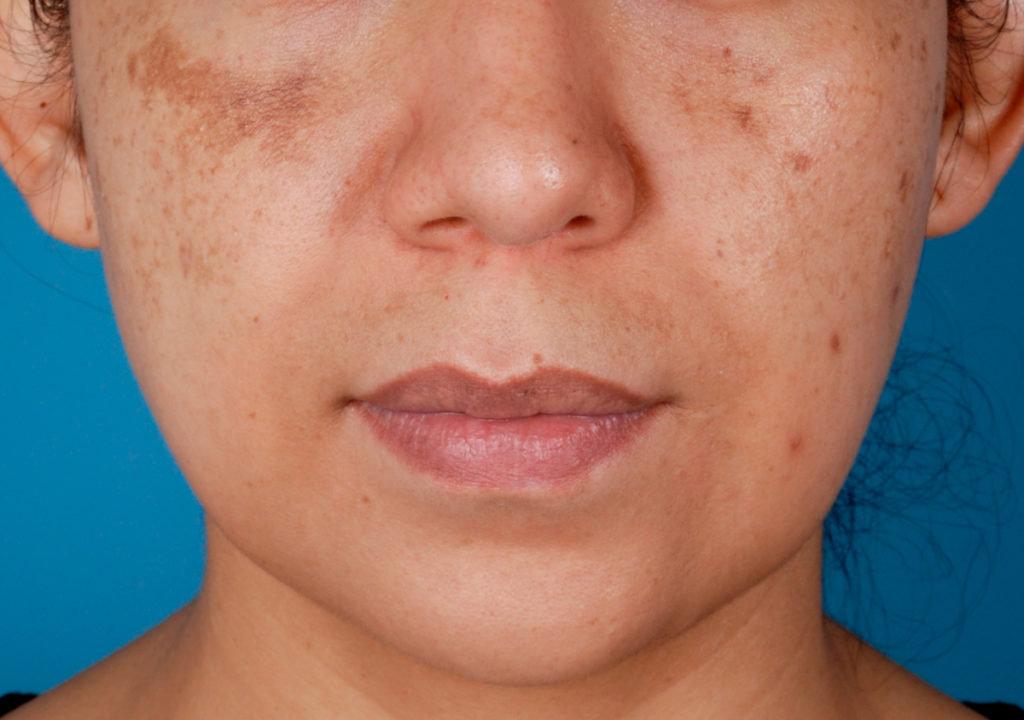 Pigmentpletter i ansigtet
