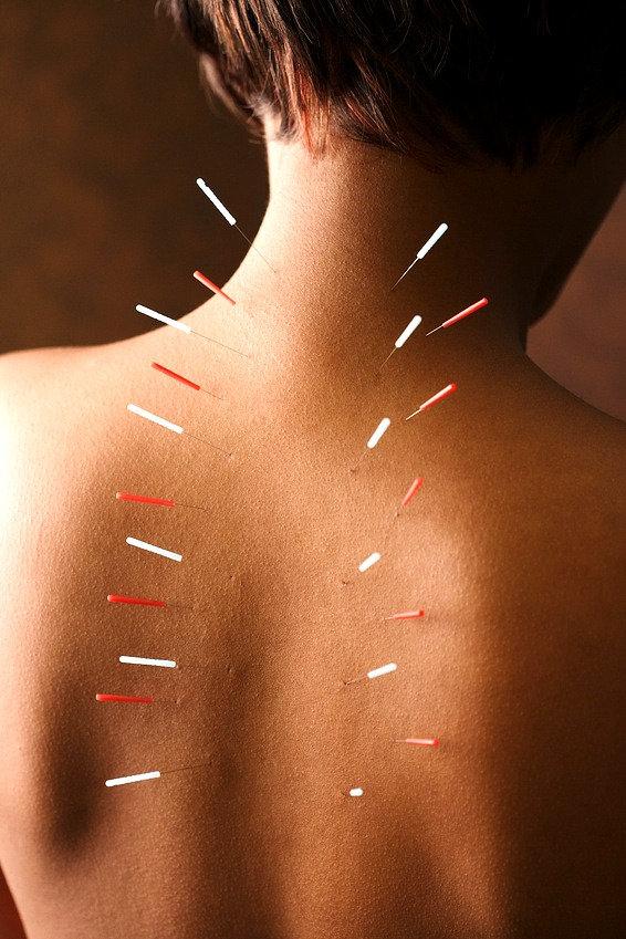 Kropsakupunktur