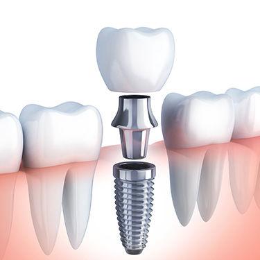implants-2.jpg