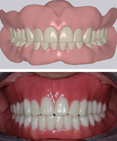 digital denture.png