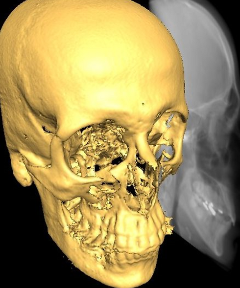 3d cephalometric-analysis_edited.png