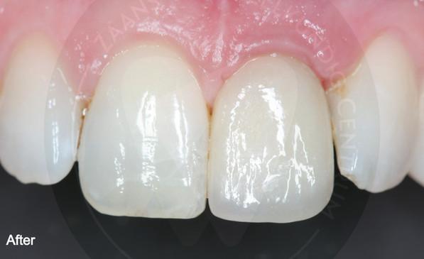 Ontbrekende tand