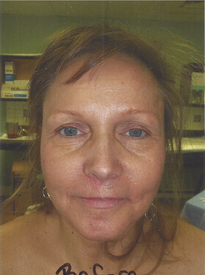 Facial Fat Transfer - Before
