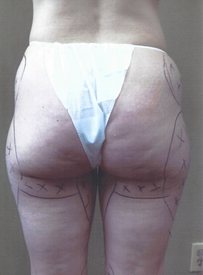 Hip and Thigh Lipo - Before