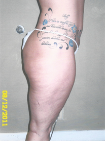 Thigh Lipo - After