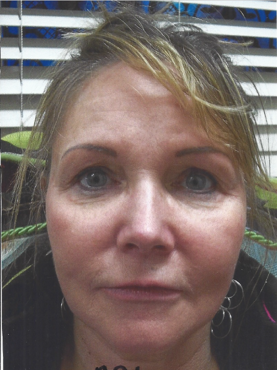 Facial Fat Transfer - After