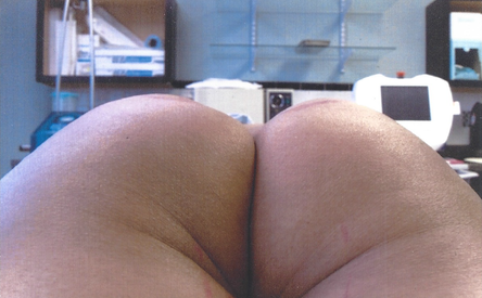 Fat Transfer - After