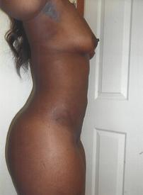 Abdominal Lipo, Breast Fat Transfer - After