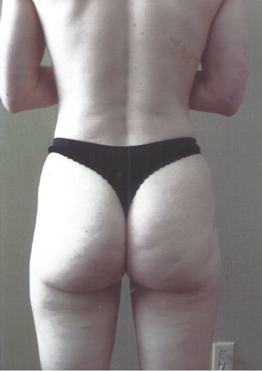 Hip and Thigh Lipo - After