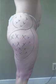 Hip and Thigh Lipo - Before (side view)