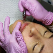Microdermabrasion & Oxygen Infusion