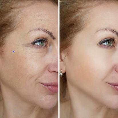 Skin tightening, Anti-wrinkle, Anti-aging Facial