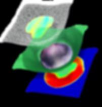 BioVolume 3D tumour model