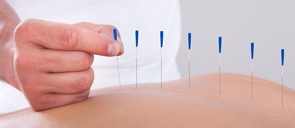 Acupuncture by Dr. Ivan Figueroa-Otero