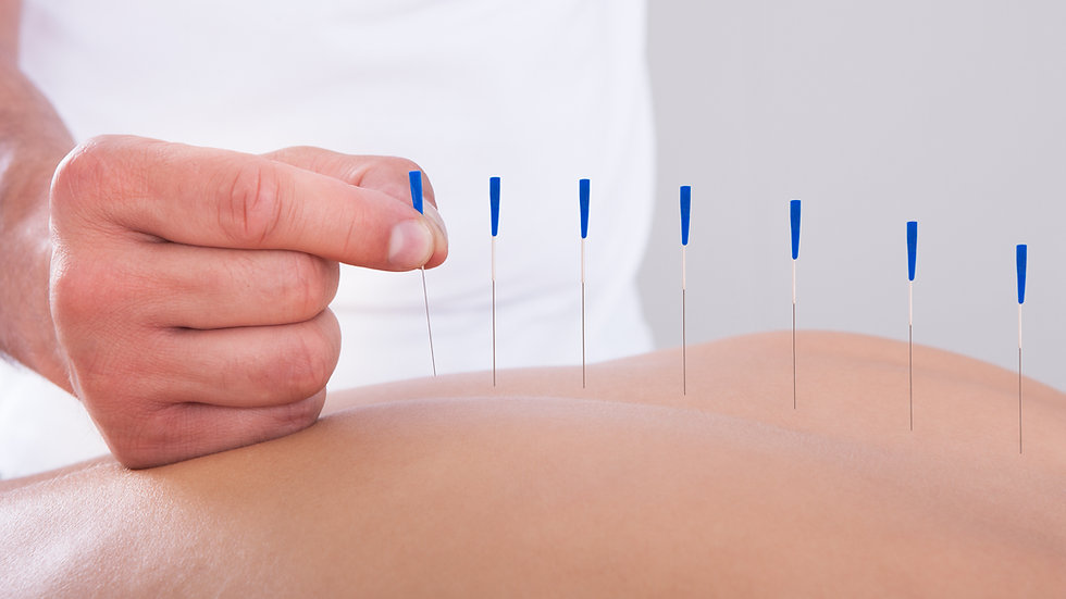 Acupuncture Consult