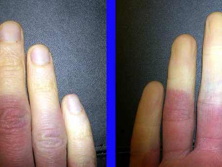 Das Raynaud-Syndrom
