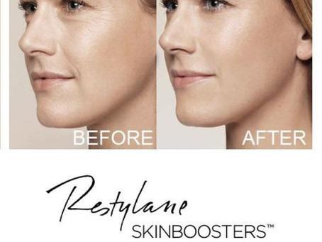 Skinbooster | La clave para lucir una piel espectacular!