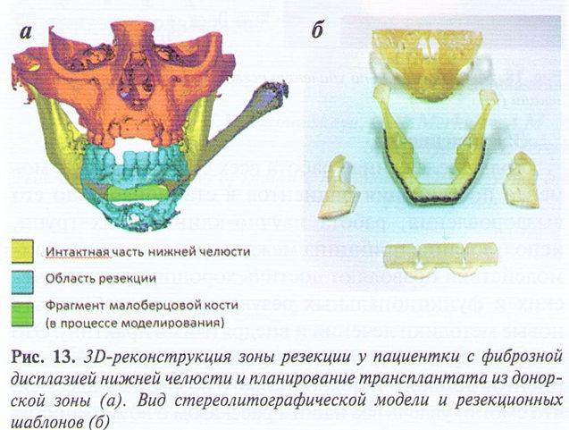 Дисплазия нижней челюсти