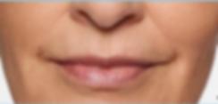 Restylane Silk lips in Gilbert