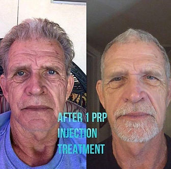 PRP in Gilbert, PRP injections, vampire facelift, vampire facial